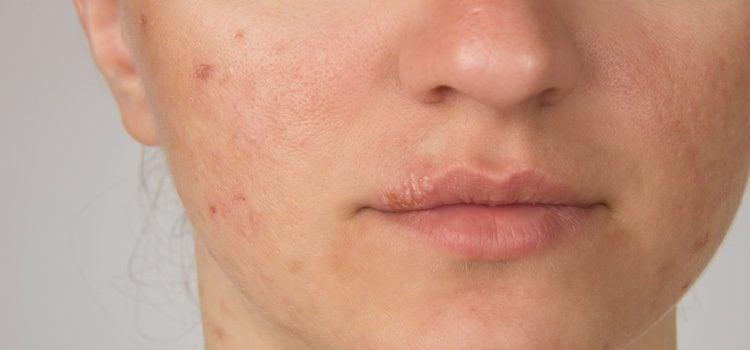 El herpes desde que aparece hasta que se elimina pasa por 4 fases