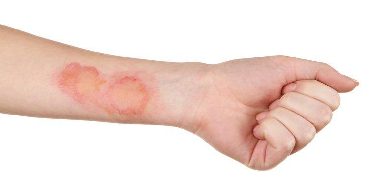 La piel reacciona de forma diferente ante los agentes externos que la atacan