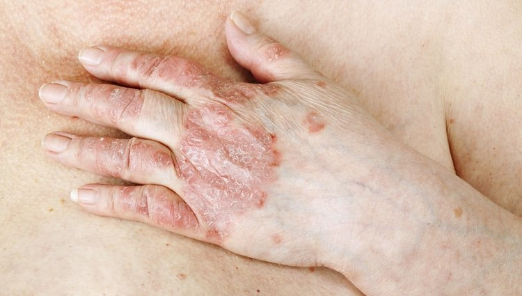 La psoriasis es una enfermedad autoinmune que puede afectar a la piel provocando brotes y sarpullidos que la lesionan