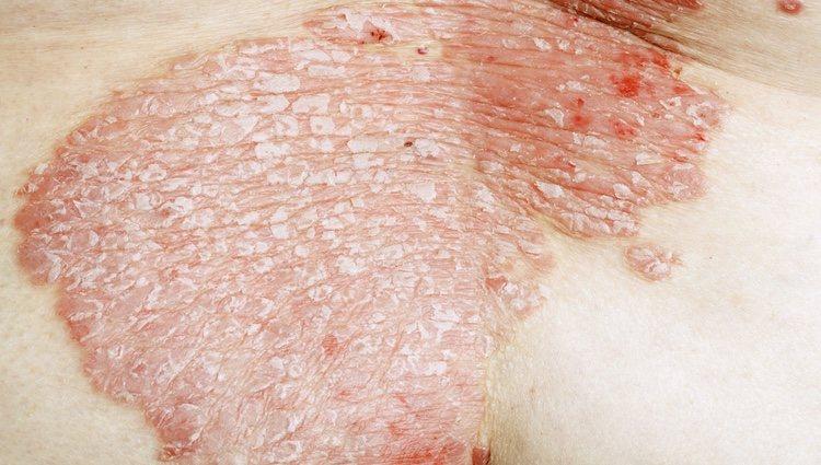 Los brotes más evidentes de la psoriasis se manifiestan en el cuello, codos o rodillas