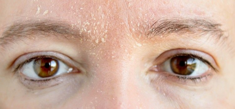 Para las pieles secas convienen cremas muy hidratantes con base de agua