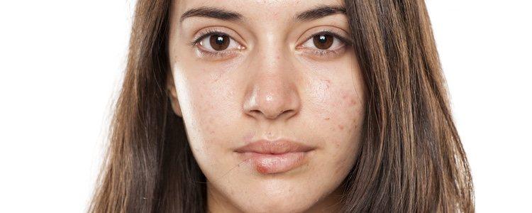 Cuando nos sale un herpes en la cara hay que lavar cuidadosamente sábanas y cojines