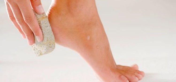 La piedra pómez te ayudará a eliminar las durezas