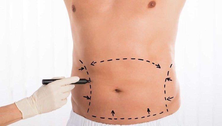 La liposucción o lipoescultura, al contrario de lo que mucha gente puede pensar, no es un tratamiento para la obesidad
