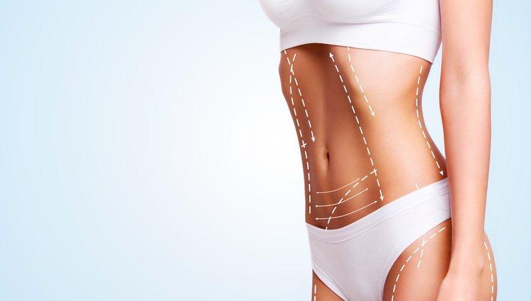 Una remodelación corporal mediante extracción de cúmulos grasos subcutáneos