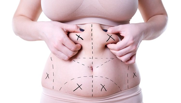 La liposucción y lipoescultura son las técnicas idóneas para eliminar el exceso de grasa
