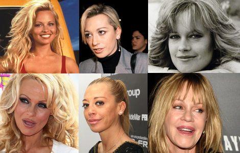Pamela Anderson, Belen Esteban y Melanie Griffith antes (arriba) y después (abajo) de sus retoquesGriffith