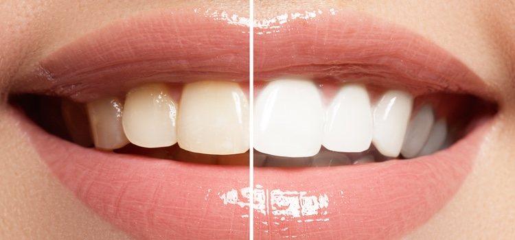 Los dientes se estropean por ciertos hábitos perjudiciales