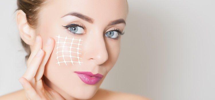 El aumento de pómulos se suele realizar cuando aparecen las primeras líneas de expresión en el rostro