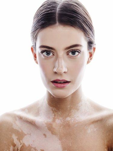 Cuando vayamos a maquillar alguna mancha de nacimiento es fundamental primero hidratar la piel