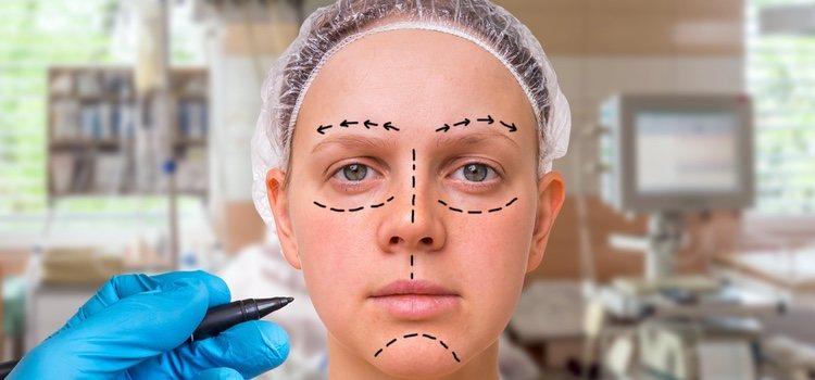 Si optamos por una cirugía debemos ir a un buen profesional