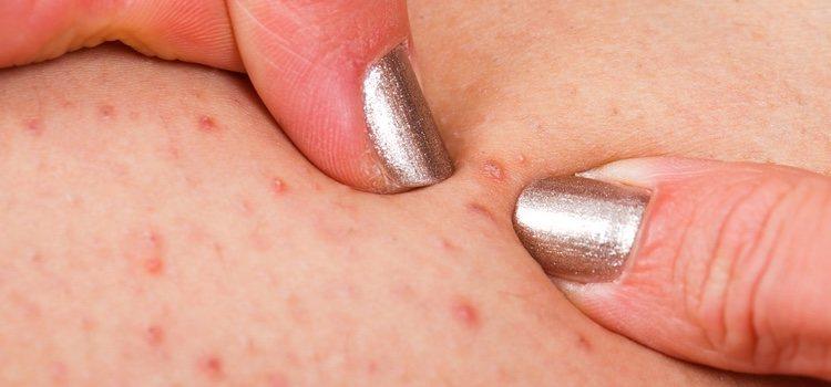 Esta enfermedad infecciosa se produce por la inflamación de varios nódulos