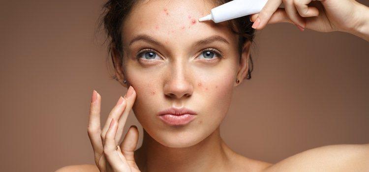 Estas manchas son muy comunes, son las producidas por el acné