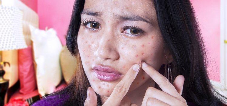El acné no solo esta presente en la adolescencia