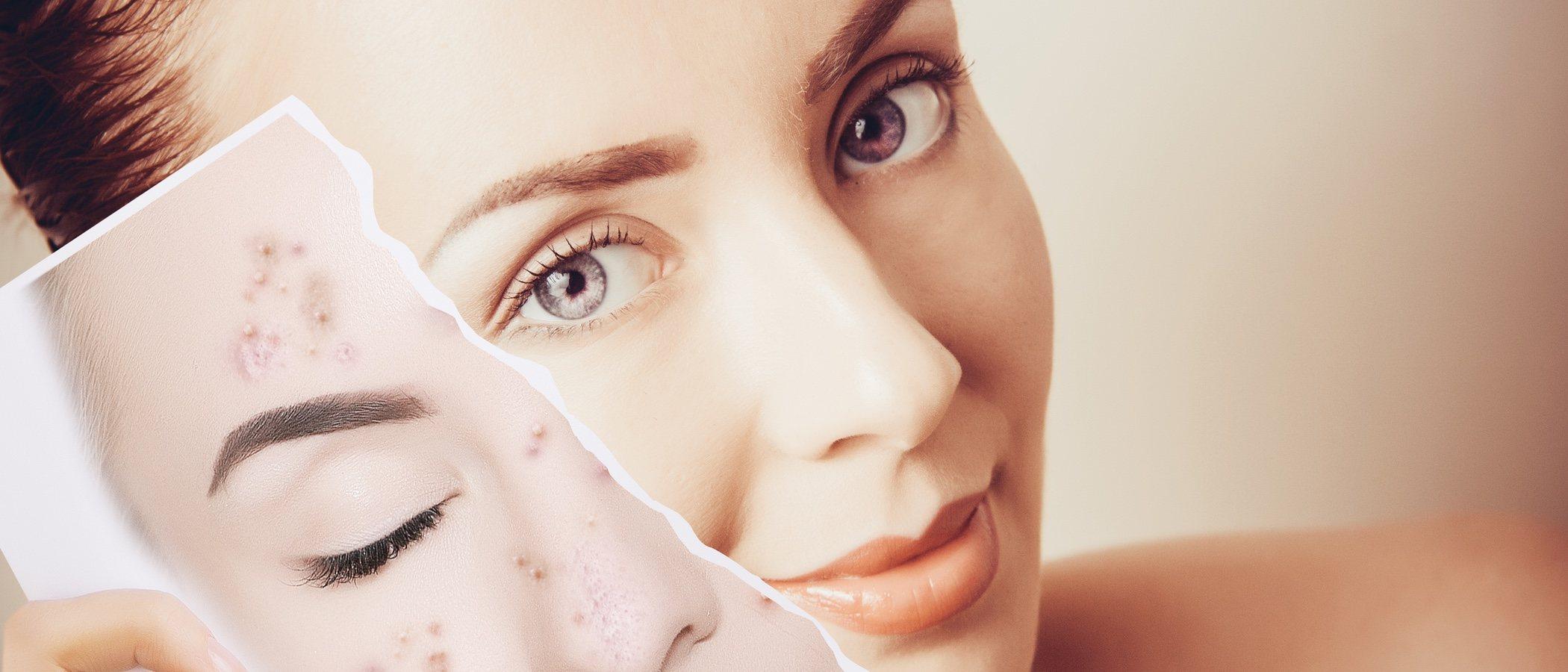 Mitos sobre el acné: verdades y mentiras