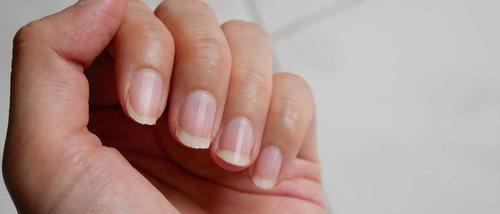 Trucos para blanquear tus uñas