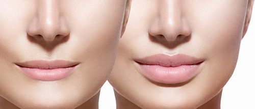 Tipos de labios: la forma de la boca desvela tu personalidad