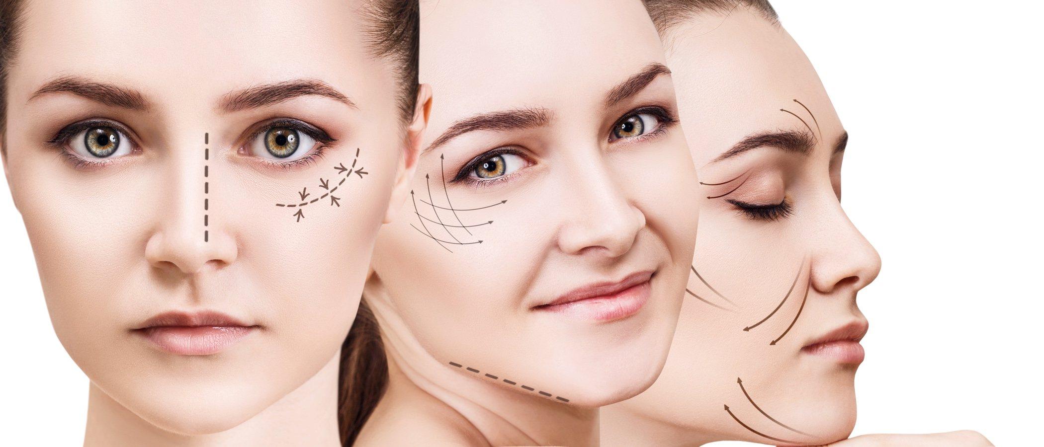 Adelgazar la cara cirugia laser