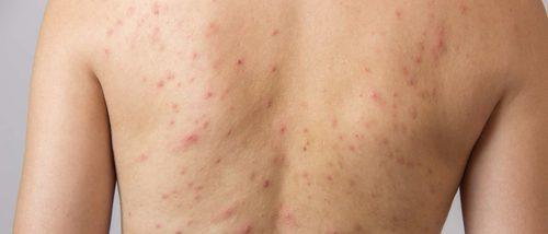Prevenir y curar la forunculosis