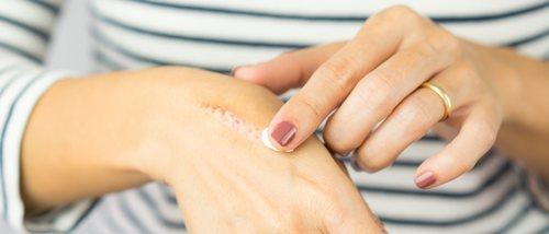 Como curar una herida de quemadura de aceite