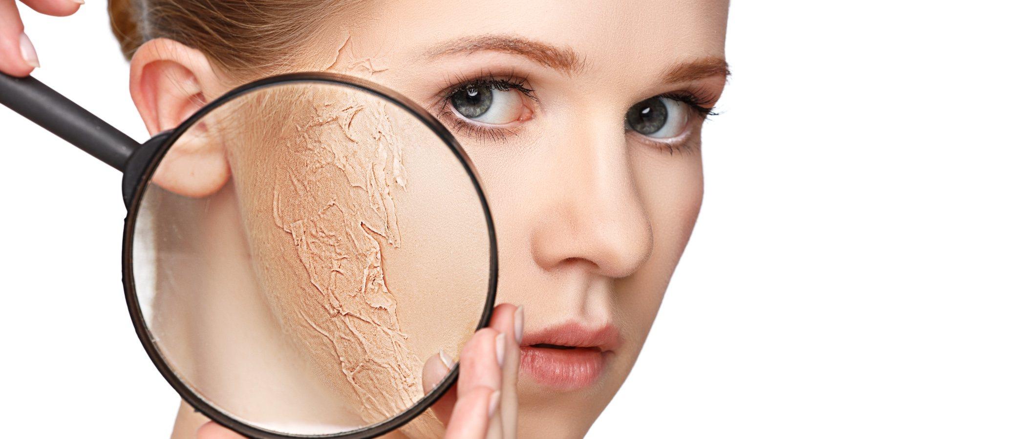 Piel seca: consejos para evitar la sequedad de tu piel