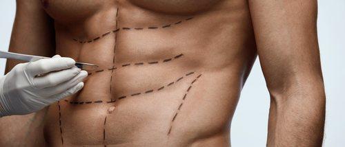 Cirugía estética para hombres: ¿qué me opero?