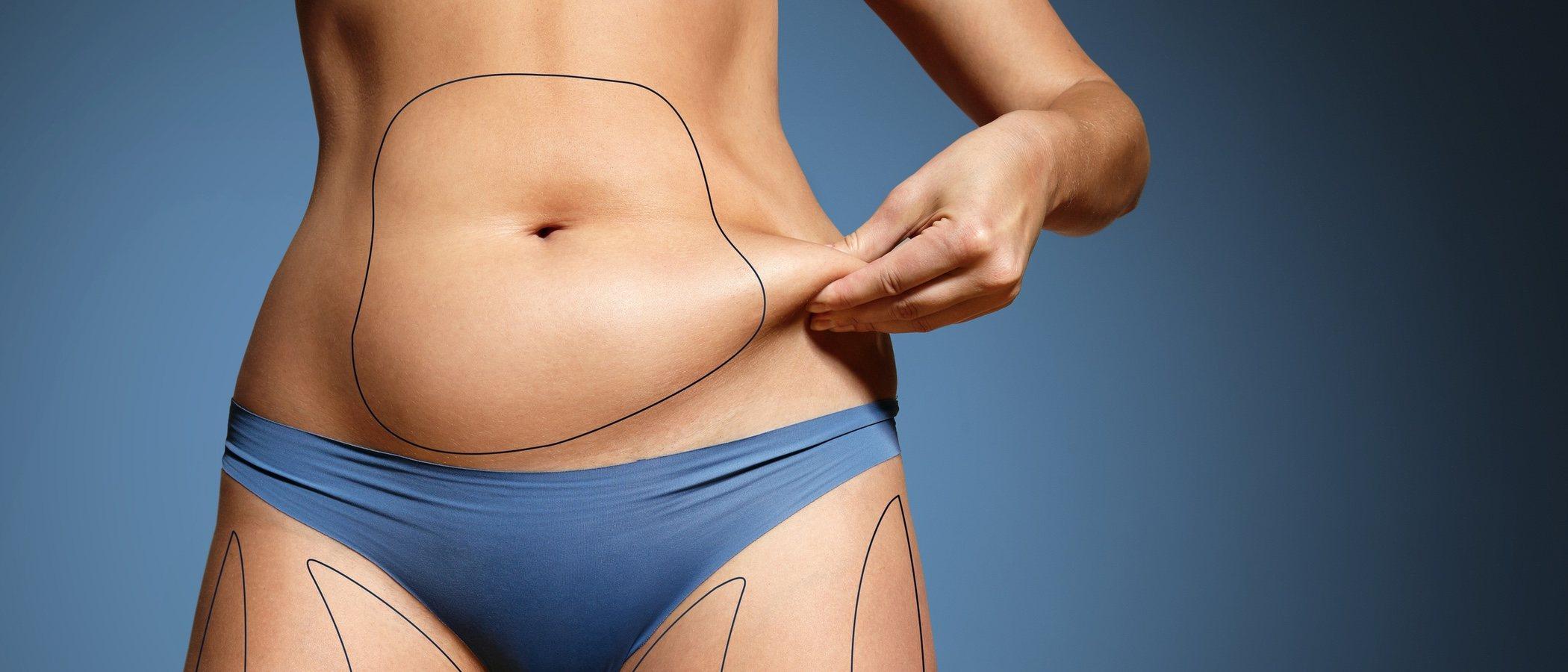 Liposucción: consejos para después de la operación