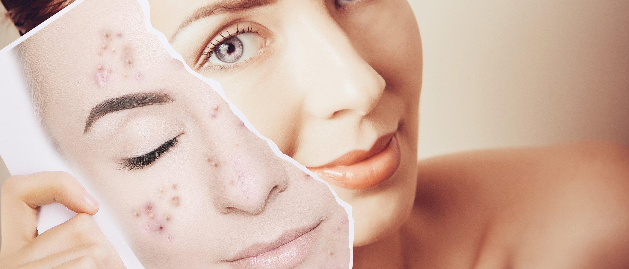 Cómo ganar la batalla al acné juvenil