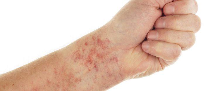 Causas de las petequias: ¿por qué salen esas manchitas rojas?