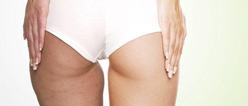 Eliminar la flacidez de piernas