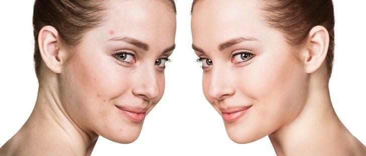 Cómo maquillarse para ocultar el acné
