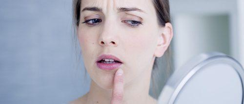 Herpes en la cara: causas de su aparición