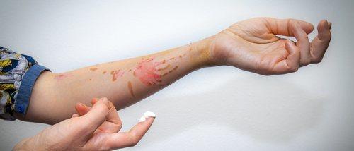 Quemaduras con aceite: cómo evitar que salgan manchas en la piel