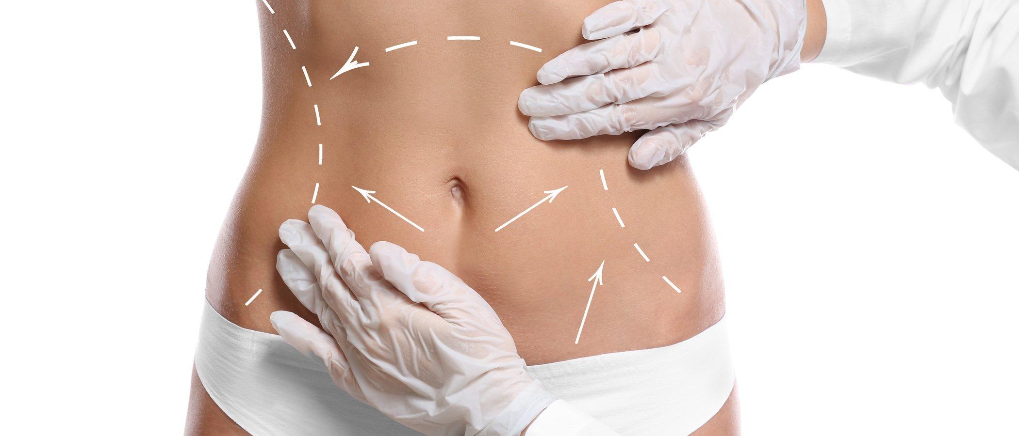 Liposucción y lipoescultura: moldea tu cuerpo