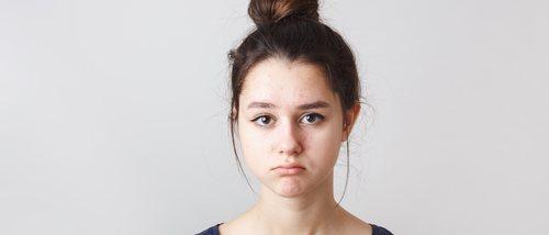 6 remedios caseros para la piel irritada