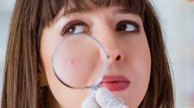 Cómo cuidar las pieles con tendencia al acné