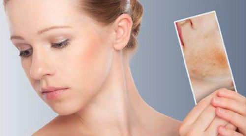 Pieles atópicas: combate los síntomas