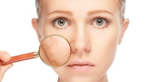 Cómo quitar las manchas de la piel