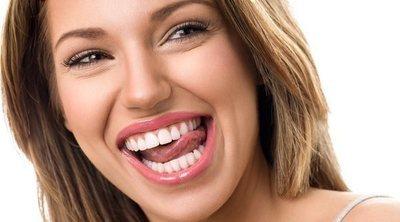 Carillas dentales: consigue unos dientes perfectos