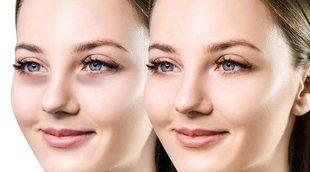 Tratamientos caseros contra las ojeras