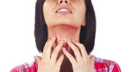 Psoriasis: tratamientos caseros