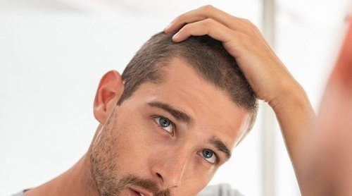 Cómo luchar contra la calvicie masculina: Mitos y realidades