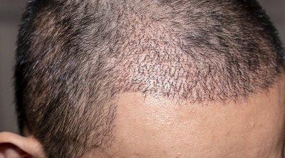 Ventajas e incovenientes de los injertos de pelo