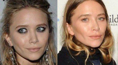 Mary-Kate Olsen y otras famosas que se operaron radicalmente el rostro
