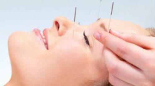 Suaviza tus arrugas con la acupuntura cosmética