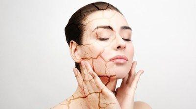 Cómo cuidar la piel áspera