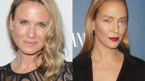 Famosas mal operadas: el caso de Uma Thurman, Renee Zellweger y Mary-Kate Olsen