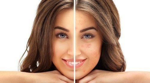 El maquillaje permanente: la micropigmentación