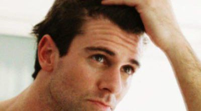 Mitos que se cumplen: la gomina acelera el proceso de alopecia masculina