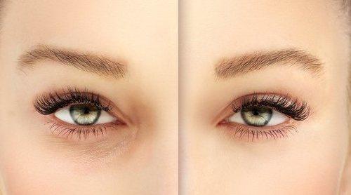 Remedios naturales contra los ojos hinchados